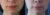 Aumento de labios con infiltración de grasa - Dr Lazaro Cárdenas Caso 1
