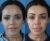 Cirugía de Implante de pómulo - Dr. Lázaro Cárdenas - Caso 2 A