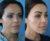 Cirugía de Implante de pómulo - Dr. Lázaro Cárdenas - Caso 2 B