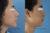 Cirugía de Nariz – Eliminación de giba