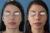 Cirugía de Nariz – Remodelación de la punta
