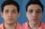 Cirugía de orejas - Caso 1