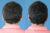 Cirugía de orejas - Caso 1 B