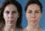 Riti infiltración de grasa en cara - Dr. Lázaro Cárdenas - Caso 1 A